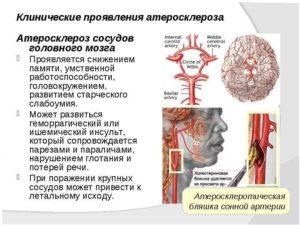 Как лечить атеросклероза сосудов