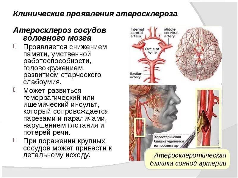Проблемы с сосудами головного мозга признаки