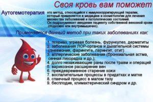 Аутогемотерапия лечение
