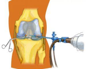 Гнойный артрит лечение
