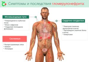 Как лечить гломерулонефрит
