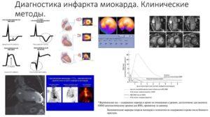 Инфаркт миокарда диагностика лечение