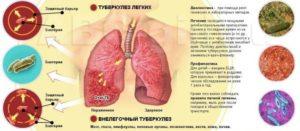 Раковые заболевания лечение
