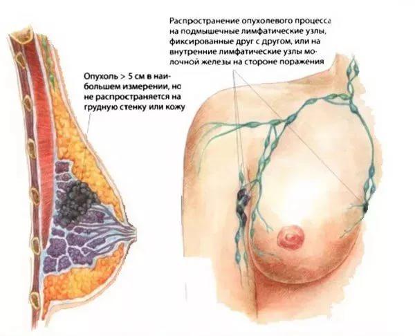 Мастит грудной железы симптомы