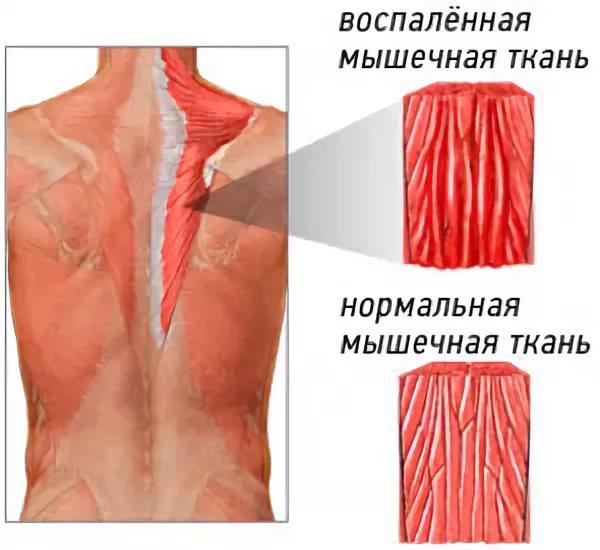 Миозит левого плеча