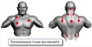Миозит мышц симптомы и лечение