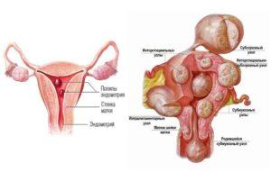 Миома матки методы лечения