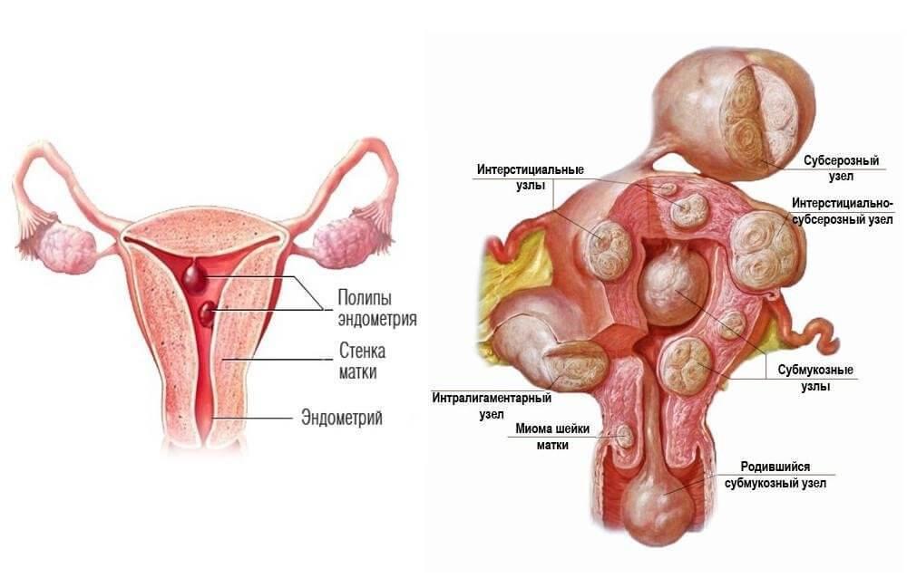 Миома матки симптомы лечение - Как лечить разные болезни