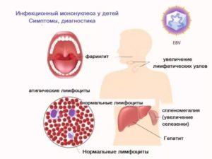 Инфекционный мононуклеоз лечение
