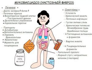 Лечение муковисцидоза