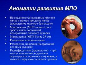 Мужские заболевания лечение