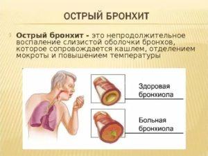 Лечение острый бронхит