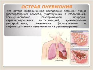 Острая пневмония лечение