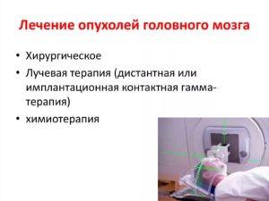 Диагностика и лечение опухоли мозга