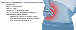 Как можно лечить пиелонефрит