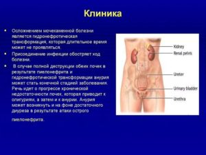 Почечнокаменная болезнь симптомы