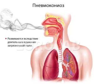 Лечение пневмокониозов