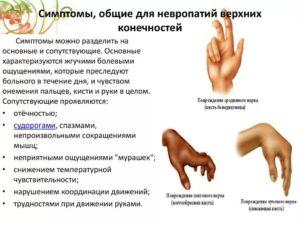 Лечение полиневропатии