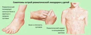 Лечение ревматической лихорадки