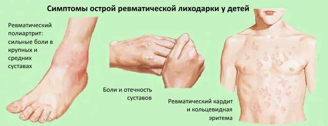 курорты лечение ревматизма суставов иркутская область