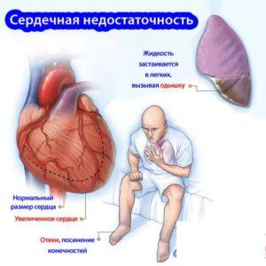 Острая сердечная недостаточность лечение