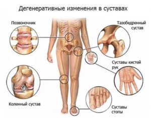 Суставные заболевания лечить