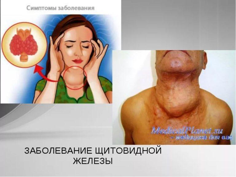Обнаружение заболевания щитовидной железы у детей на первой стадии развития очень важно, особенно, если дело касается детей.
