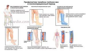 Тромбофлебит вен симптомы лечение