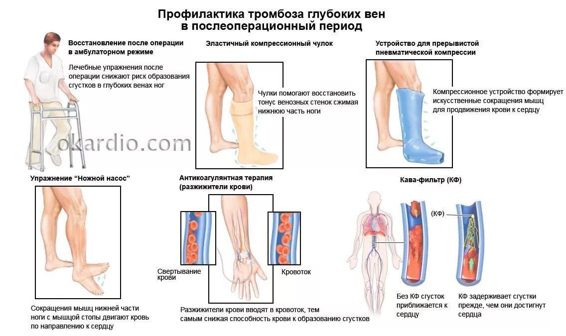 Чем лечить тромбофлебит нижних конечностей в домашних  606