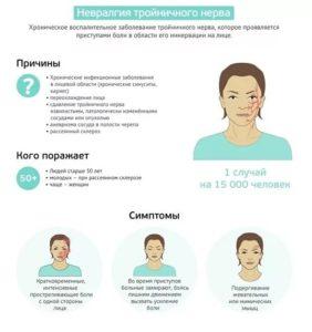 Невралгия тройничного нерва симптомы и лечение