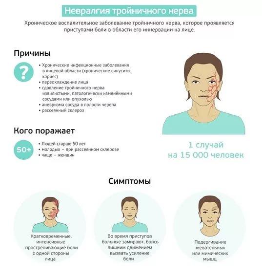 Симптомы болезни тройничного нерва