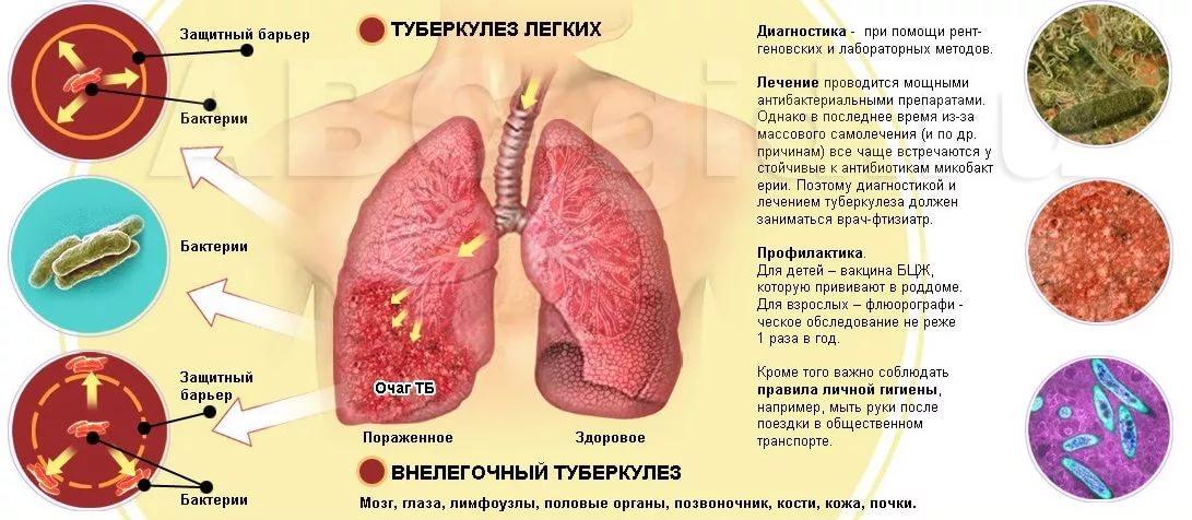 Как вылечить туберкулез домашних условиях