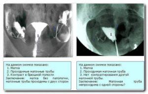 Воспаление маточных труб лечение