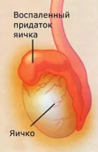 Воспаления яичка симптомы лечение