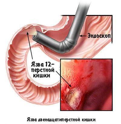 Как вылечить желудок от язвы в домашних условиях 112