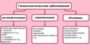Женские заболевания лечение