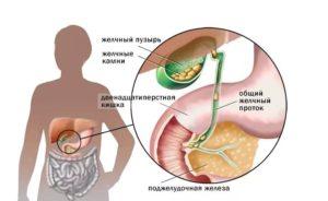 Воспаление желчного пузыря лечение