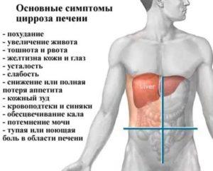 Цирроз печени причины лечение